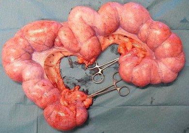 infektion i livmoderen